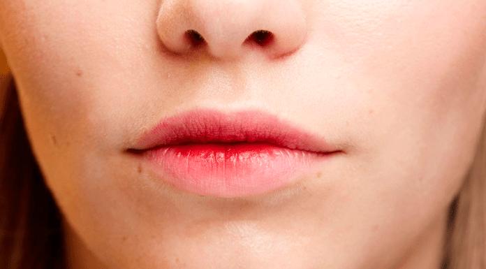 çatlamış dudaklar